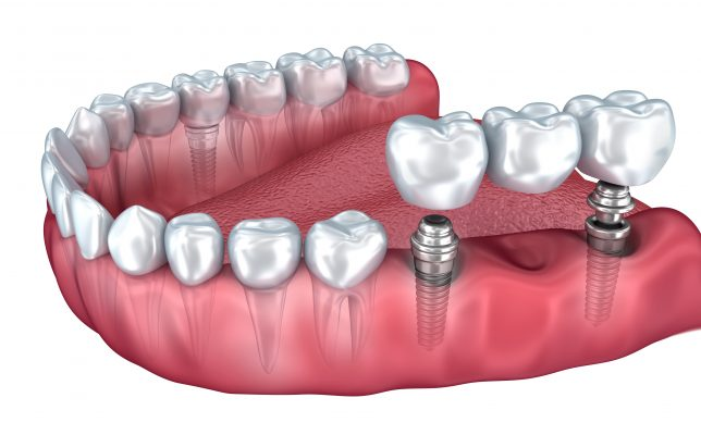 Dental Implant | Glowing Smile Dental